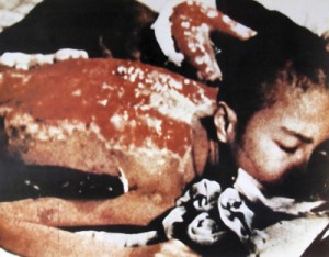 Radiation Burns from a victim in Hiroshima.