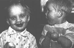 Birth defects as a result of Chernobyl