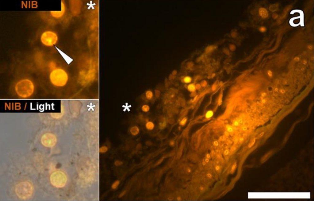 fluorescence micrograph